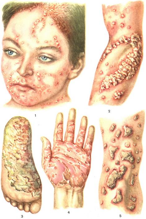 Псориаз, причины и симптомы, лечение псориаза народными